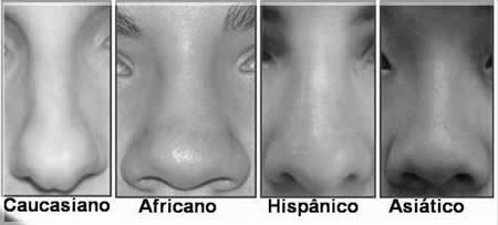 Plástica em orientais no nariz